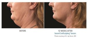 Double-Chin-coolsculpting